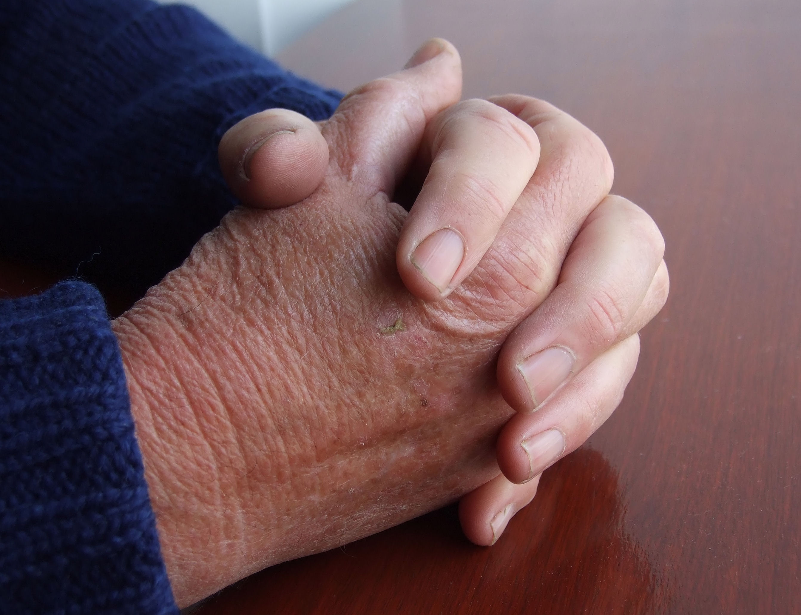 Osłabienie, złe samopoczucie czy jest to demencja starcza?